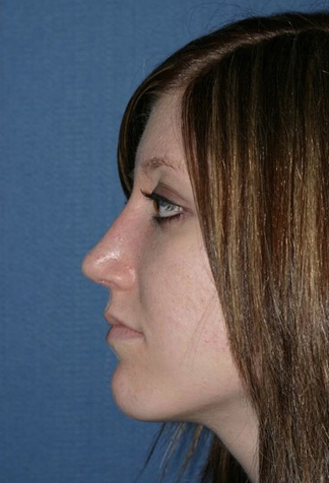 Rhinoplasty Before & After Patient #821
