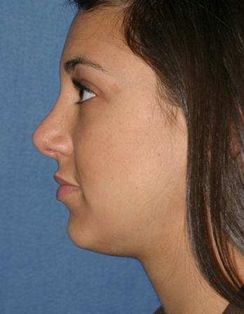 Rhinoplasty Before & After Patient #835