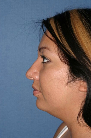 Rhinoplasty Before & After Patient #742