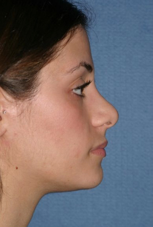 Rhinoplasty Before & After Patient #749