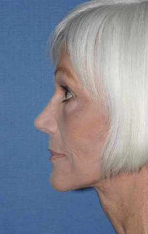 Rhinoplasty Before & After Patient #761