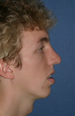 Rhinoplasty Before & After Patient #773