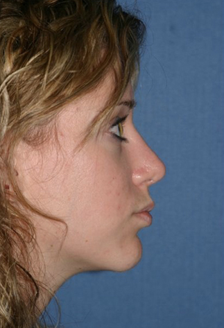 Rhinoplasty Before & After Patient #778