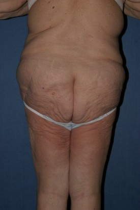 Body Lift Before & After Patient #874