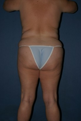 Body Lift Before & After Patient #893