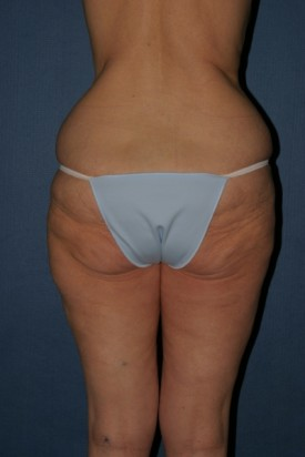 Body Lift Before & After Patient #902