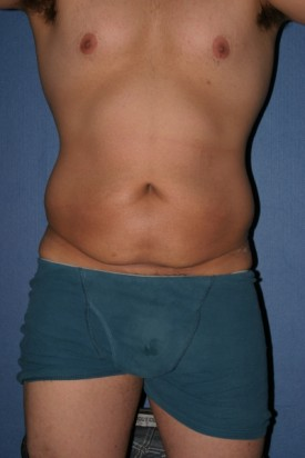 Body Lift Before & After Patient #943