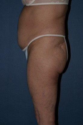 Body Lift Before & After Patient #952