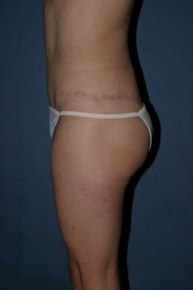 Body Lift Before & After Patient #865
