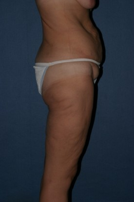 Body Lift Before & After Patient #961