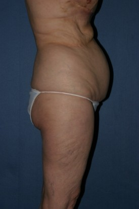 Body Lift Before & After Patient #914