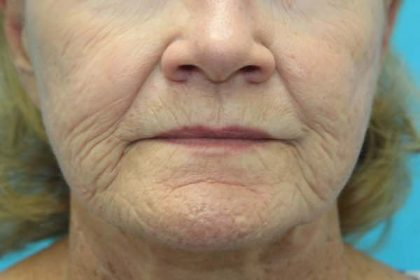 Croton Peel Before & After Patient #1523