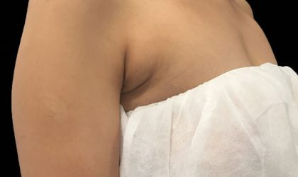 CoolSculpting Before & After Patient #1470
