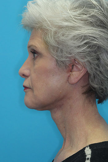 Fat Transfer Before & After Patient #1627