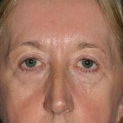 Eyelid Lift Before & After Patient #1540