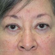 Eyelid Lift Before & After Patient #1543