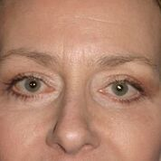 Eyelid Lift Before & After Patient #1546
