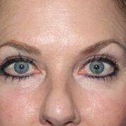 Eyelid Lift Before & After Patient #1549