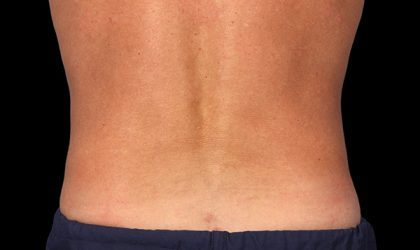 CoolSculpting Before & After Patient #1479