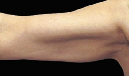 CoolSculpting Before & After Patient #1485