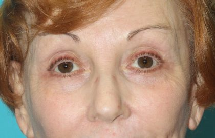 Eyelid Lift Before & After Patient #2260