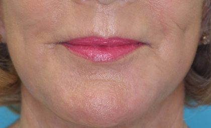 Laser Resurfacing Before & After Patient #2032