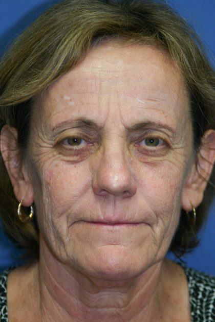 Laser Resurfacing Before & After Patient #2029