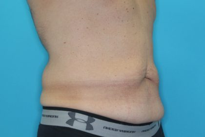 Tummy Tuck (Lipoabdominoplasty) Before & After Patient #1805