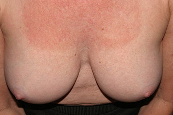 Breast Deformity Correction Before & After Patient #1932