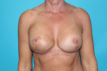 Breast Deformity Correction Before & After Patient #1935