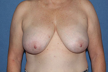 Breast Lift (Mastopexy) Before & After Patient #1889