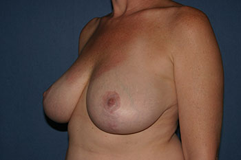 Breast Lift (Mastopexy) Before & After Patient #1882