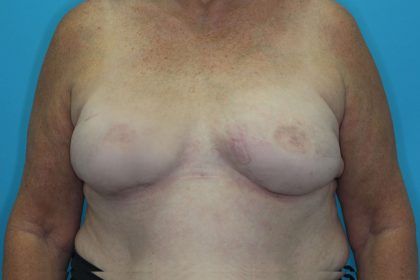 Breast Reconstruction (Fat Only) Before & After Patient #1903