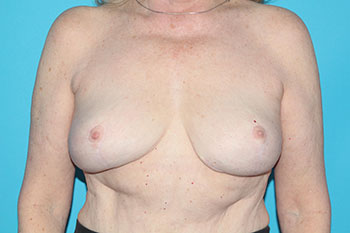 Breast Reduction Before & After Patient #1918