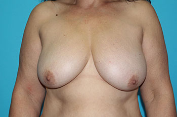 Breast Reduction with Auto Augmentation Before & After Patient #1925
