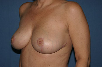 Breast Reduction Before & After Patient #1906
