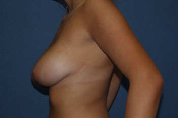 Breast Reduction Before & After Patient #1913