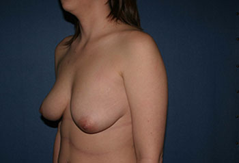Breast Lift with Augmentation Before & After Patient #1896