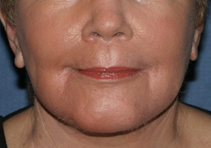 Laser Resurfacing Before & After Patient #2242