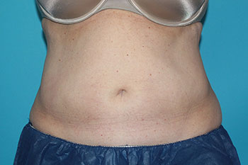 CoolSculpting Before & After Patient #1979