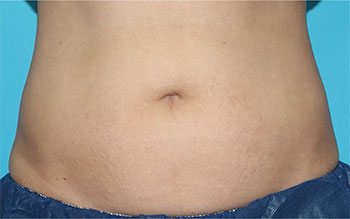 CoolSculpting Before & After Patient #1967
