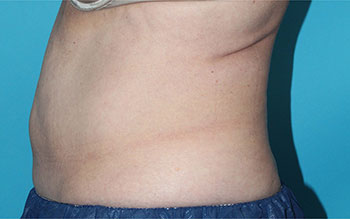 CoolSculpting Before & After Patient #1970