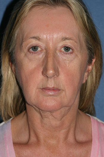 Face Before & After Patient #1663