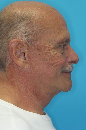 Facelift Before & After Patient #1674
