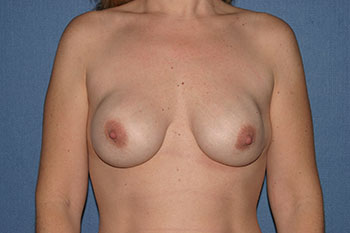 Breast Before & After Patient #1846