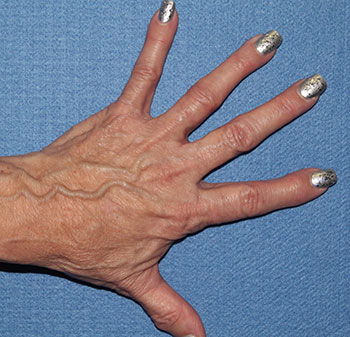 Hands Before & After Patient #1983