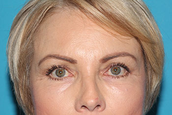 Glabellaplasty Before & After Patient #2026
