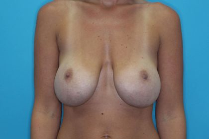 Breast Lift (Mastopexy) Before & After Patient #2226