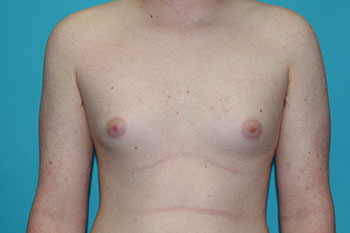 Gynecomastia Before & After Patient #1938