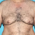Gynecomastia Before & After Patient #1962